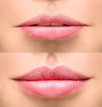1x Beautiful Lips durch Hyaluron
